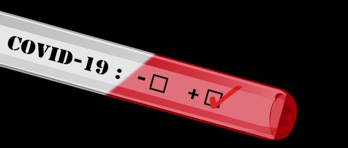Viren-Test oder pseudowissenschaftliches Roulette?
